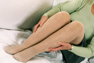 woman legs pain