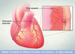 heart small vessel disease