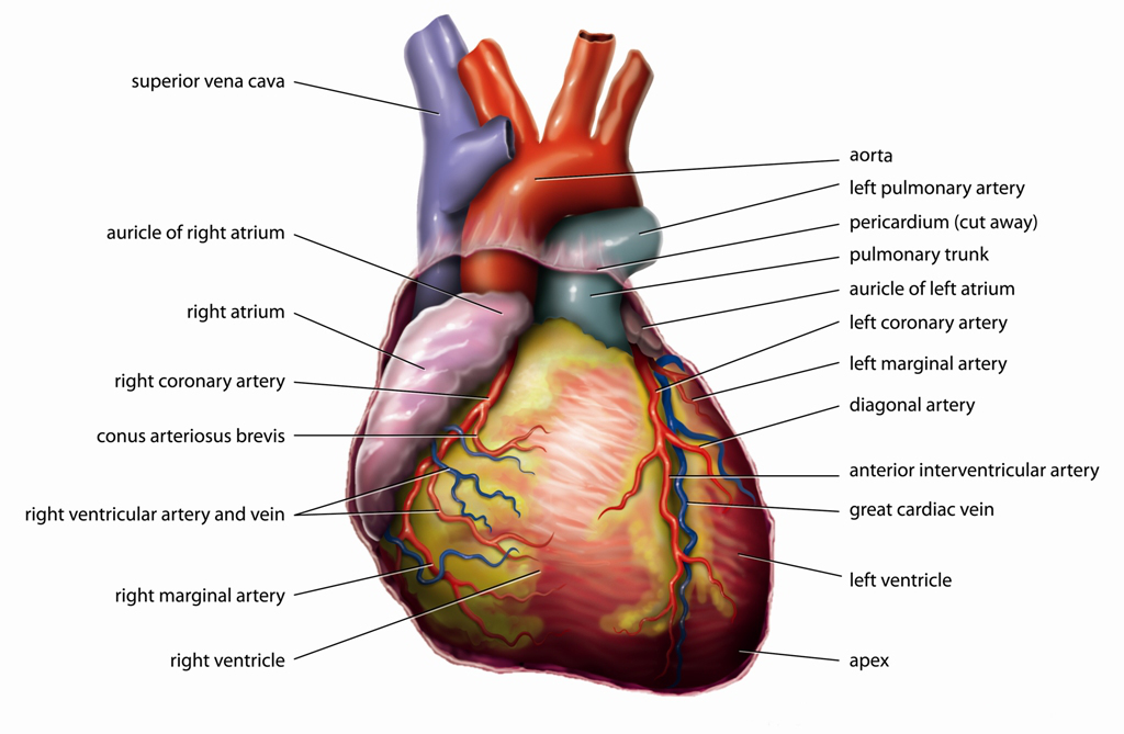 A heart attack occurs when the flow of blood to the heart is blocked. The blockage is most often a buildup of fat, cholesterol and other substances, which form a plaque in the arteries that feed the heart (coronary arteries). The plaque eventually breaks away and forms a clot. The interrupted blood.