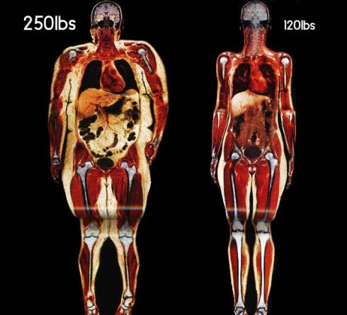 What your body fat really looks like   Heart Sisters