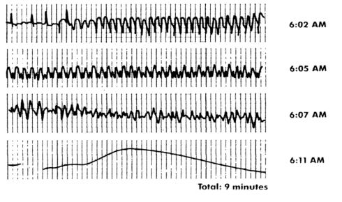 24 Hour Holter Monitor via Dr. John Mandrola